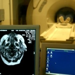 減量生活はガンを発症するリスクも抑える